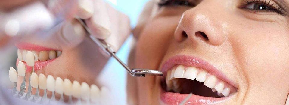 تلبيس الاسنان ابتسامة هوليوود