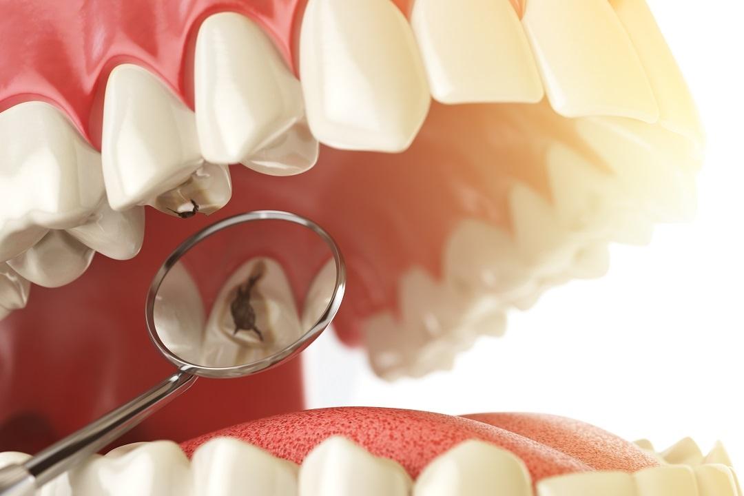 علاج الاسنان والحشوات